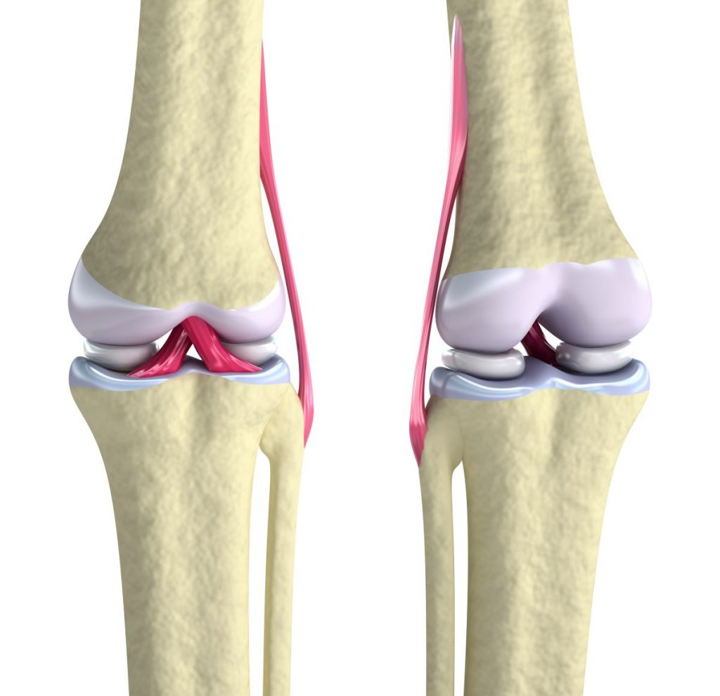 arthrose arthrite cbd